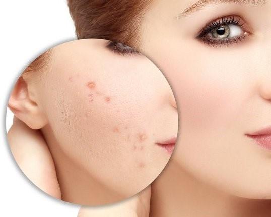 Các vết sẹo tuy không ảnh hưởng nhiều đến sức khỏe, nhưng chính là lý do khiến rất nhiều chị em bị tự ti.